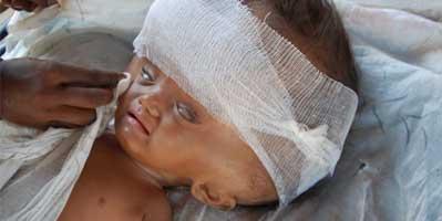 इस बच्ची की मां को डर लगता है कि कहीं इसका सिर फट न जाए। Image courtesy : dailymail